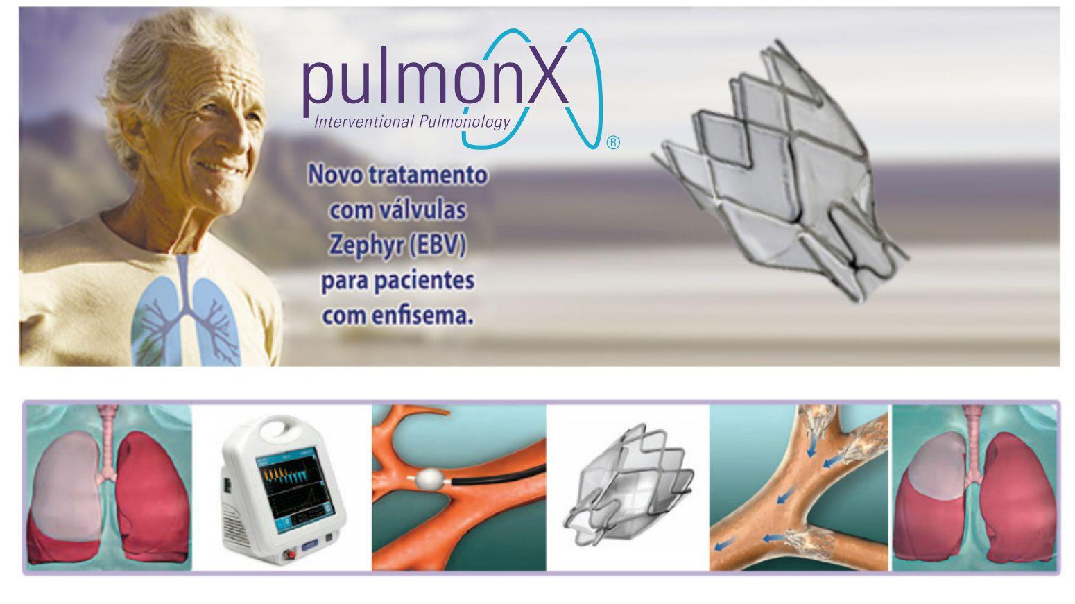 FOTO HOME PULMONX